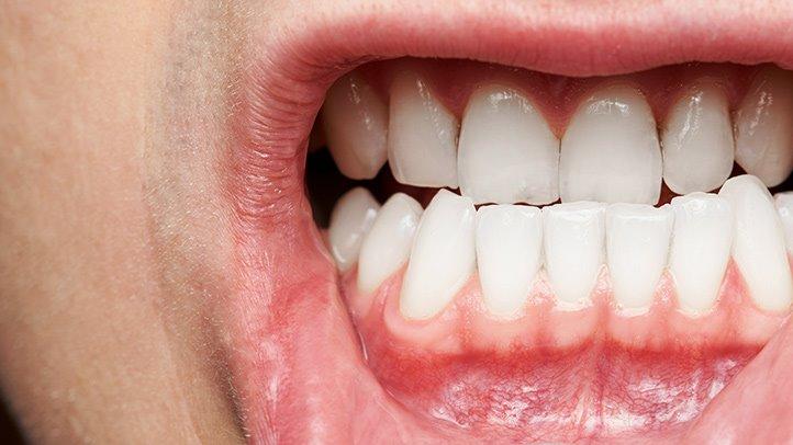Symptoms-of-periodontal-disease